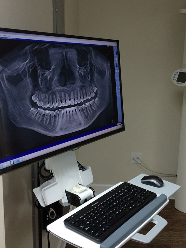 3D Pano Dental Xray Viewer